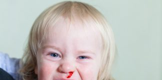 A baby with a bleeding nose