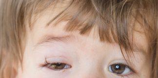 Conjunctivitis in Babies & Kids