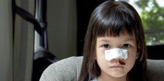 Nose bleeding in children