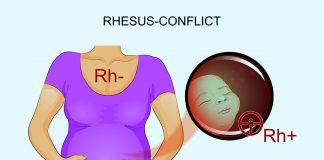 Illustration of Rh-conflict in a pregnant mother