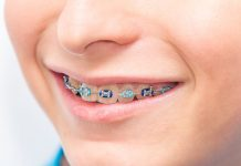 Braces for Kids Teeth
