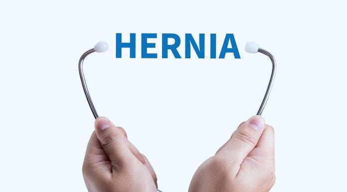 An Umbilical hernia