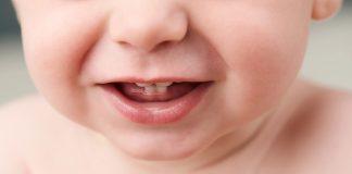Teething in Toddler - Symptoms & Remedies