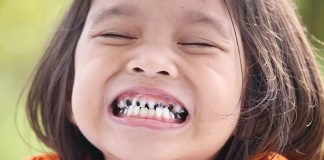 Broken Teeth in Kids - Causes, Treatment, and Prevention