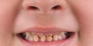 Yellow and Other Discoloration of Teeth in Children